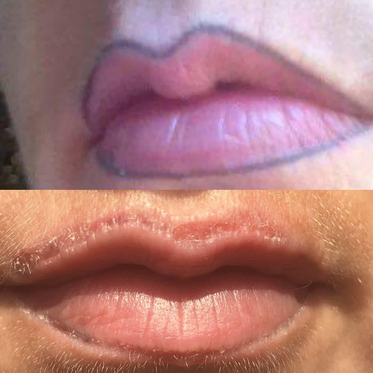Beliebt Bevorzugt Lippen Permanent Make Up entfernen durch den Profi | RT Tiefenbacher #FC_99