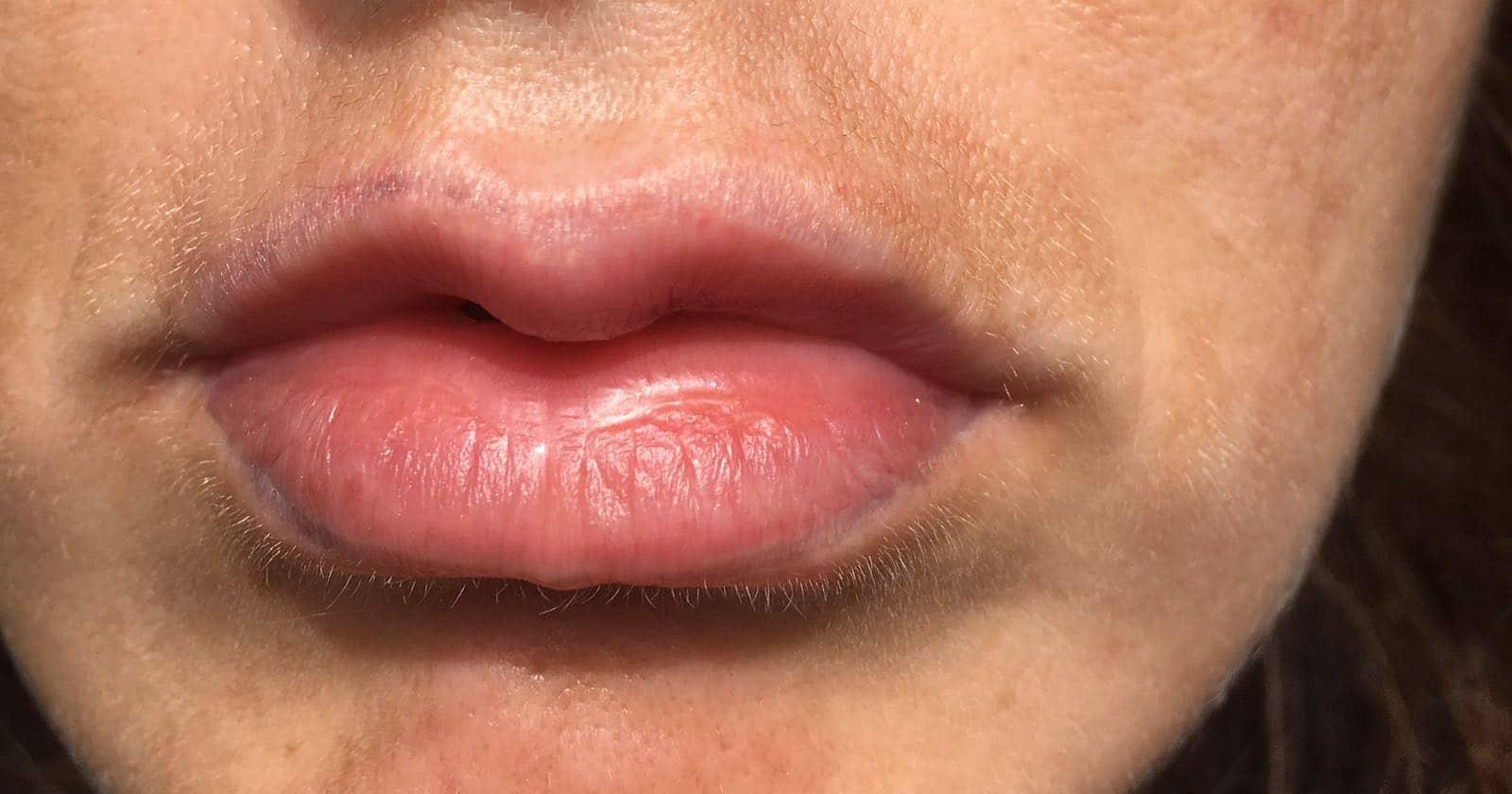 lippen permanent make up entfernen durch den profi rt tiefenbacher. Black Bedroom Furniture Sets. Home Design Ideas
