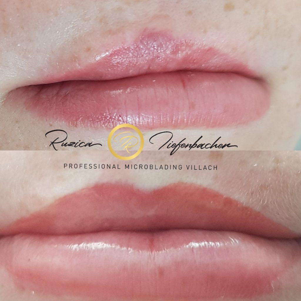 Permanent Makeup Lippenspalte